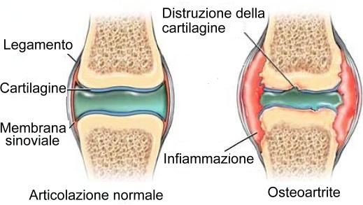 osteoartrite-cura