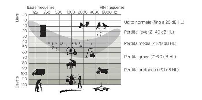 tabelle gradi sordità