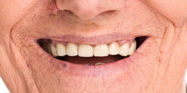 migliori prodotti per pulire la dentiera